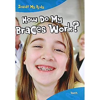 Hvordan arbeider jeg tannregulering?: tenner (Hardback)