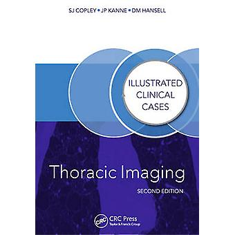 Thoracic Imaging - Illustrated Clinical Cases (2nd Revised edition) by
