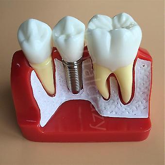 Dental Teach Implant Analysis Crown Bridge Amovible Modèle Dental Démonstration dentaire