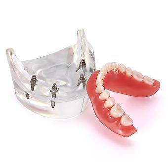 Zahnimplantatzähne - herausnehmbares Inneres mit Implantaten oberer, unterer Zahn