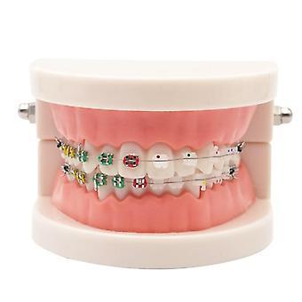Dental kjeveortopedisk behandlingsmodell med ortho metall keramisk brakett