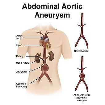 Kunstner depcition af abdominale aorta aneuryism plakat Print af Alan GesekStocktrek billeder
