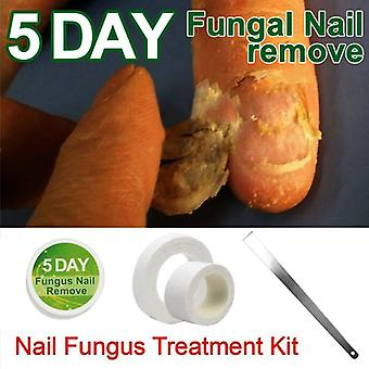 Anti Fungal Nail Infection Essence Nail Treatment Removal- Medicine Herbs Nail Care Lotion