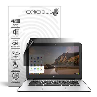 Celicious Privacy Lite 2-Way Anti-Glare Anti-Spy Filter Screen Protector Film Compatible with HP Chromebook 14 G4