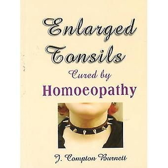 Amígdalas ampliadas curadas por homeopatia por J Compton Burnett