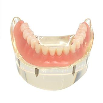 Dental Overdenture Removable Interior Mandibular Lower Teeth Model Mandibular With Implant For Tooth Teaching Study