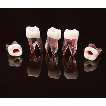 Dental Tooth Root Canal Model Voor Rct Praktijk Pulp Tandheelkunde Lab Model Dental