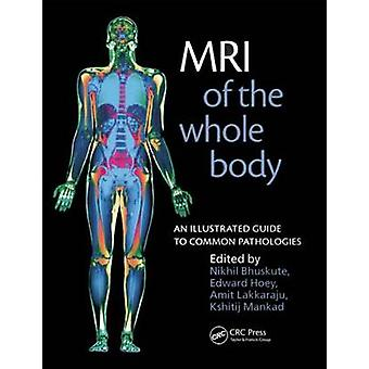 MRI of the Whole Body by Nikhil BhuskuteKshitij Mankad