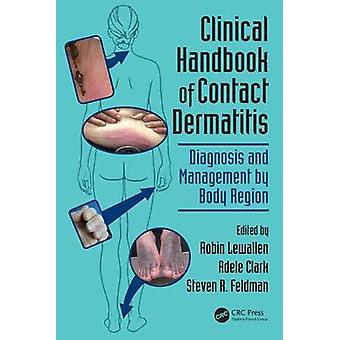 Clinical Handbook of Contact Dermatitis - Diagnosis and Management by