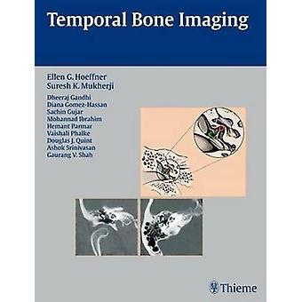 Temporal Bone Imaging by Ellen G. Hoeffner - Dheeraj Gandhi - Sachin