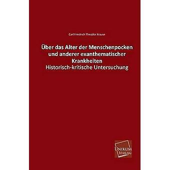 Uber Das Alter Der Menschenpocken Und Anderer Exanthematischer Krankheiten by Krause & Carl Friedrich Theodor