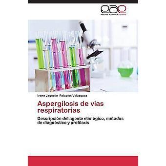 Aspergilosis de Vias Respiratorias by Palacios Velazquez Irene Jaquelin