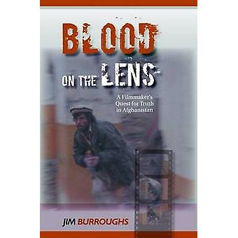 Blood on the Lens by Jim Burroughs