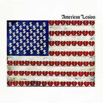 Graffin,Greg - American Lesion (White Vinyl) [Vinyl] USA import