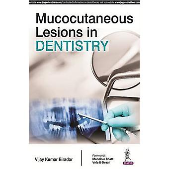 Mucocutaneous Lesions in Dentistry by Vijay Kumar Biradar - 978935250