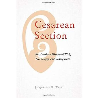 Cesarean Section - An American History of Risk - Technology - and Cons