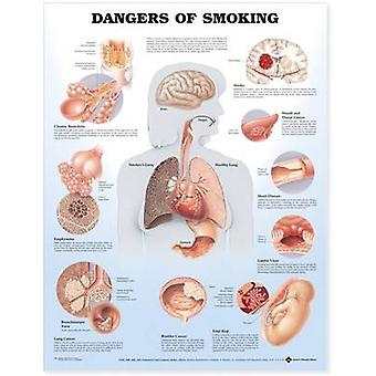 Dangers of Smoking Anatomical Chart by Prepared for publication by Anatomical Chart Company