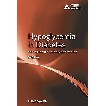 Hypoglycemia in Diabetes - Pathophysiology - Prevalence - and Preventi