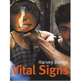 Harvey Benge: vitala tecken