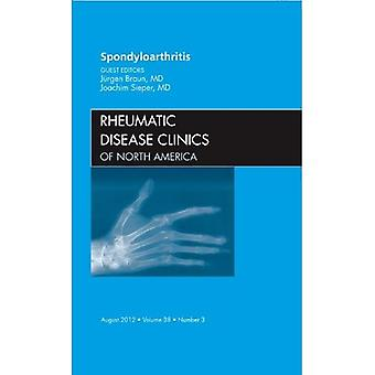 Spondyloarthropathies, An Issue of Rheumatic Disease Clinics