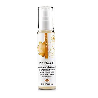 Derma E Anti-acne Acne Blemish Control Treatment Serum - 60ml/2oz