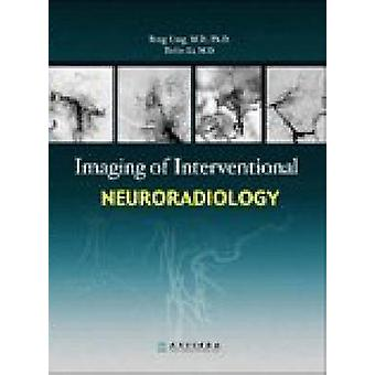 Imaging of Interventional Neuroradiology by Ling Feng - 9787117090360