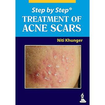 Step by Step Treatment of Acne Scars by Niti Khunger