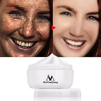 Powerful Whitening Freckle Cream 40g Melasma Acne Spots Remover Face Care Cream