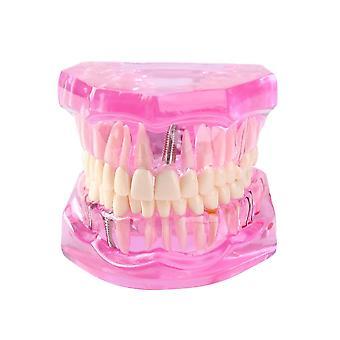 Tannimplantat sykdom Tenner Modell