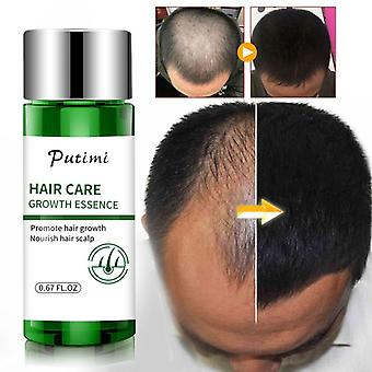 Anti-preventing Hair Loss