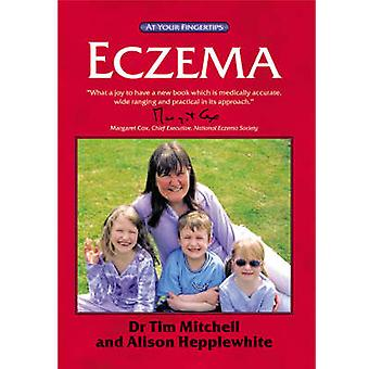 Eczema - The 'At Your Fingertips' Guide by Tim Mitchell - Alison Heppl