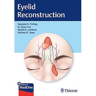 Eyelid Reconstruction by Suzanne Freitag