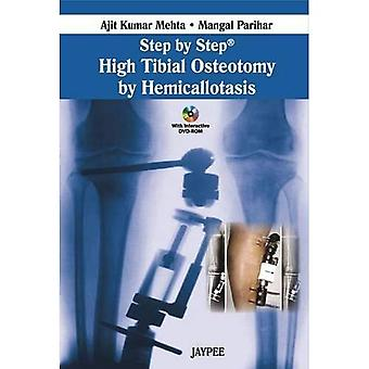 Step by Step: High Tibial Osteotomy by Hemicallotasis (Step by Step)