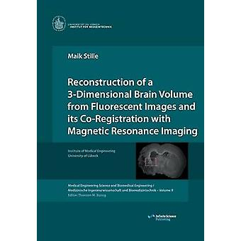 Reconstruction of a 3Dimensional Brain Volume from Fluorescent Images and its CoRegistration with Magnetic Resonance Imaging by Stille & Maik