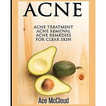 Acne Acne Treatment Acne Removal Acne Remedies For Clear Skin by McCloud & Ace
