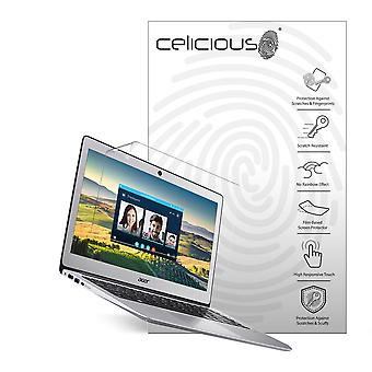 Celicious Vivid Plus Mild Anti-Glare Screen Protector Film kompatibel mit Acer Swift 3 SF314-51 [Packung mit 2]