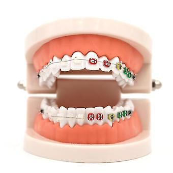 Dental Orthodontic Treatment Model Met Ortho Metal Keramische Beugel Arch Wire