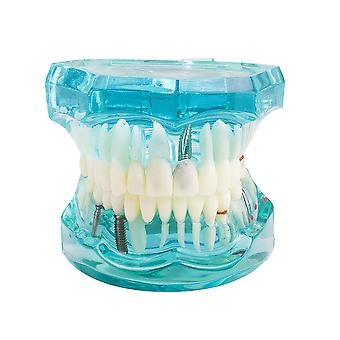 1 Piece Adult Dental Resin Restoration Model For Teeth Study, Dentist Tools