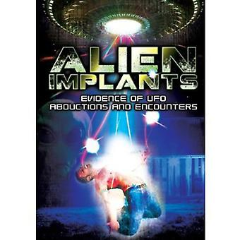 Alien Implants: Evidence of Ufo Abductions & Encou [DVD] USA import