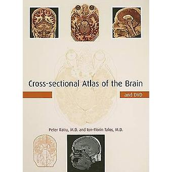 Crosssectional Atlas of the Brain and DVD by Ratiu & Peter & M.D.Talos & IonFlorin & M.D.