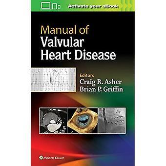 Handleiding van valvular hart-en vaatziekten