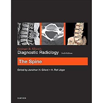 La radiologie diagnostique de Grainger & Allison : la colonne vertébrale, 6e