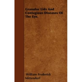 Granular Lids And Contagious Diseases Of The Eye. by Mittendorf & William Frederick