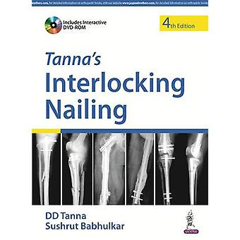 Tanna's Interlocking Nailing (4th Revised edition) by D. D. Tanna - S