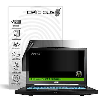 Celicious Privacy Lite 2-Way Anti-Glare Anti-Spy Filter Screen Protector Film Compatible with MSI Workstation WT73VR 7RM