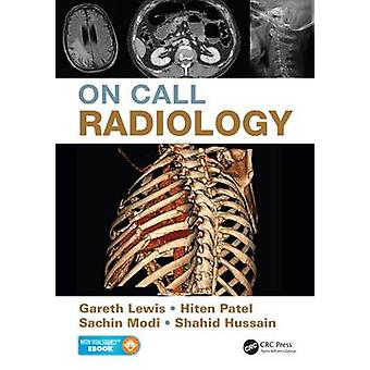 On Call Radiology by Gareth Lewis - 9781482221671 Book