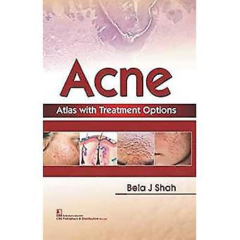 Acne Atlas met behandelingsopties