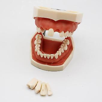 Dental Model Teeth Implant Restoration Bridge Teaching Study Tooth Medical