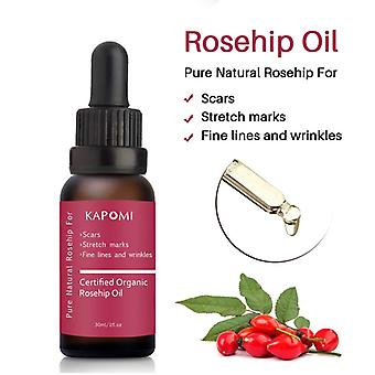 Scar Repair Skin Essential Oil Moisturizing Essence Rosehip Oil Skin Care Natural Pure Remove Ance Treatment anti-aging oil