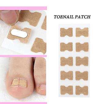 Ingrown Toenail Corrector Sticker - Paronychia Treatment Fixer,  Recover ,